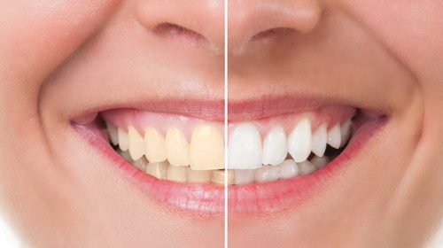 Ini Dia Cara Memutihkan Gigi Secara Alami Yang Murah Dan Efektif